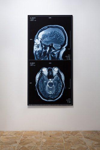 Brain-Inflation-2009-web_