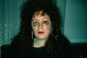 Nan Goldin, Autorretrato